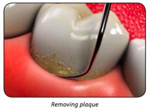 removingPlaque